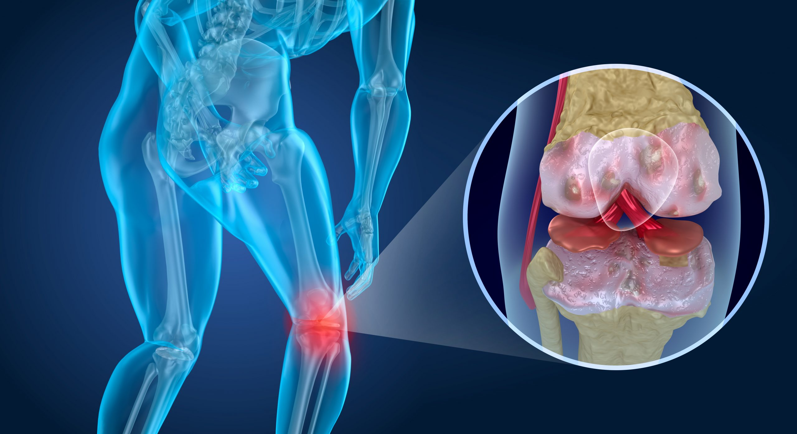 Regrow Knee Cartilage? Promising research