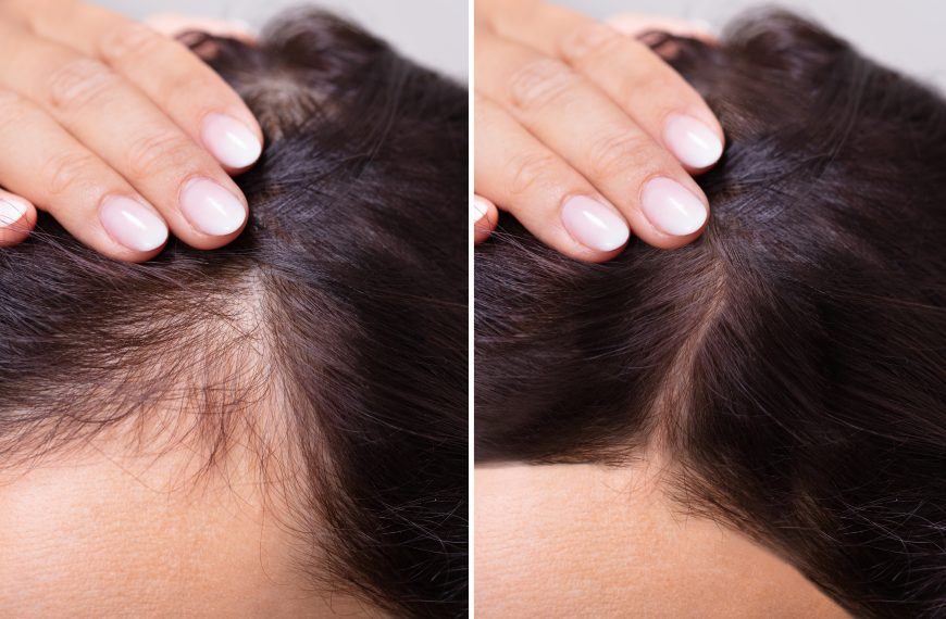 How To Regrow Thinning Hair